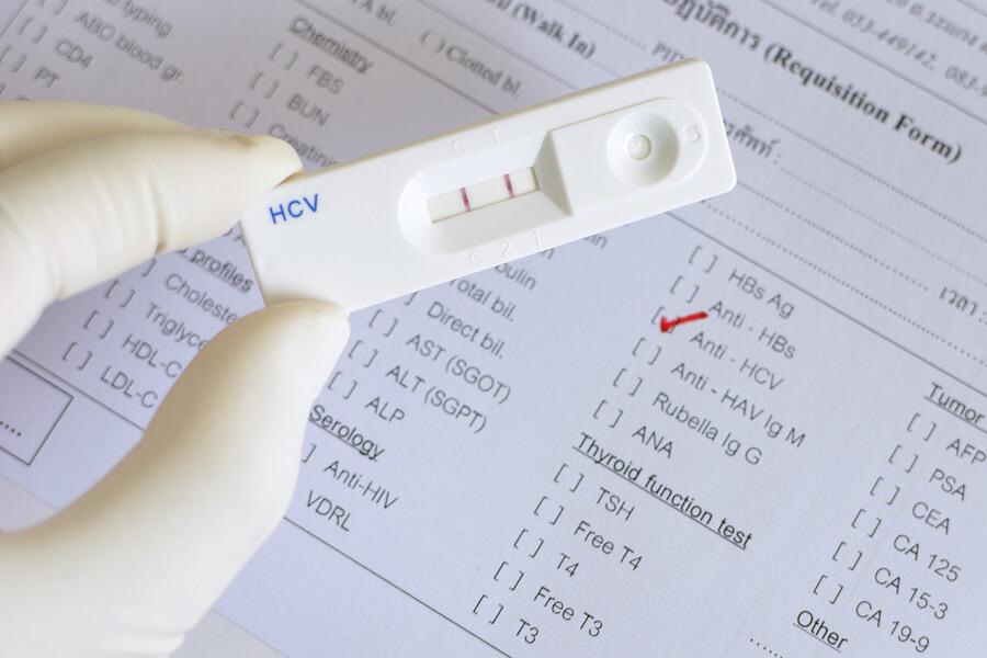 тест на гепатит