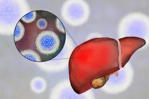 Гепатит С 3-го генотипа: в чем опасность этого субвида ВГС и особенности его лечения, Диагностика Гепатита С