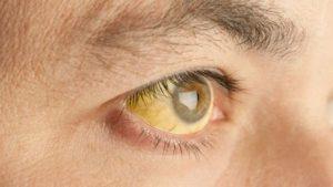 Лечение гепатита С софосбувиром: совместимость ингибитора с другими веществами, Противовирусные