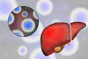 Лечение гепатита С 3-го генотипа: современные схемы терапии, Лечение гепатита С