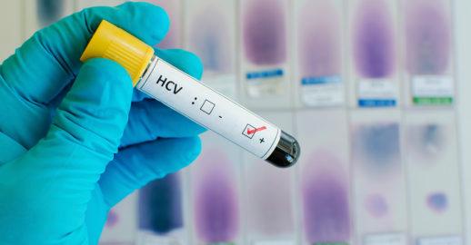 История болезни с диагнозом вирусный гепатит