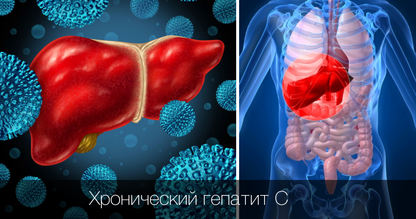 хронический гепатит с