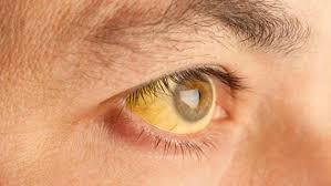 желтый глаз