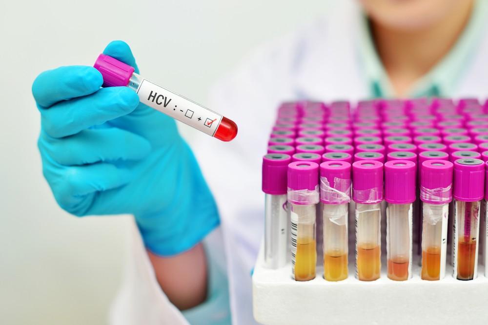 анализ крови на ЗППП гепатит С