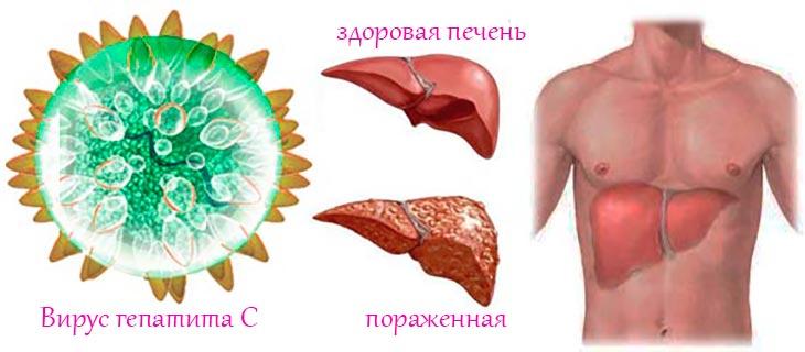 здоровая и больная печень