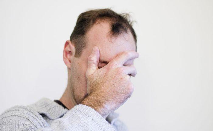 мужчна закрывает лицо рукой