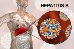 Носитель Гепатита б – кто он?, Жизнь с гепатитом В
