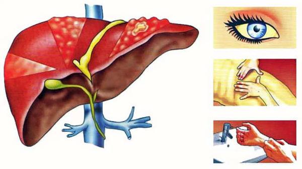Профилактика вирусного гепатита В: специфические и неспецифические меры, требования СанПиН