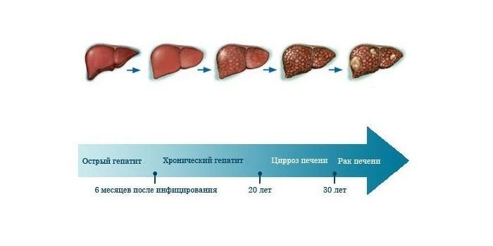 стадии болезни печени