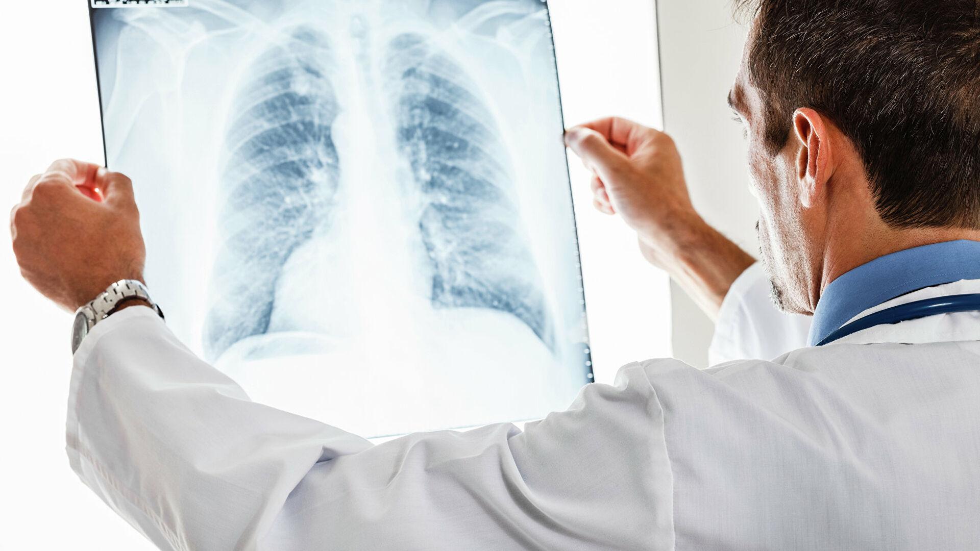 сколько длится восстановление легких