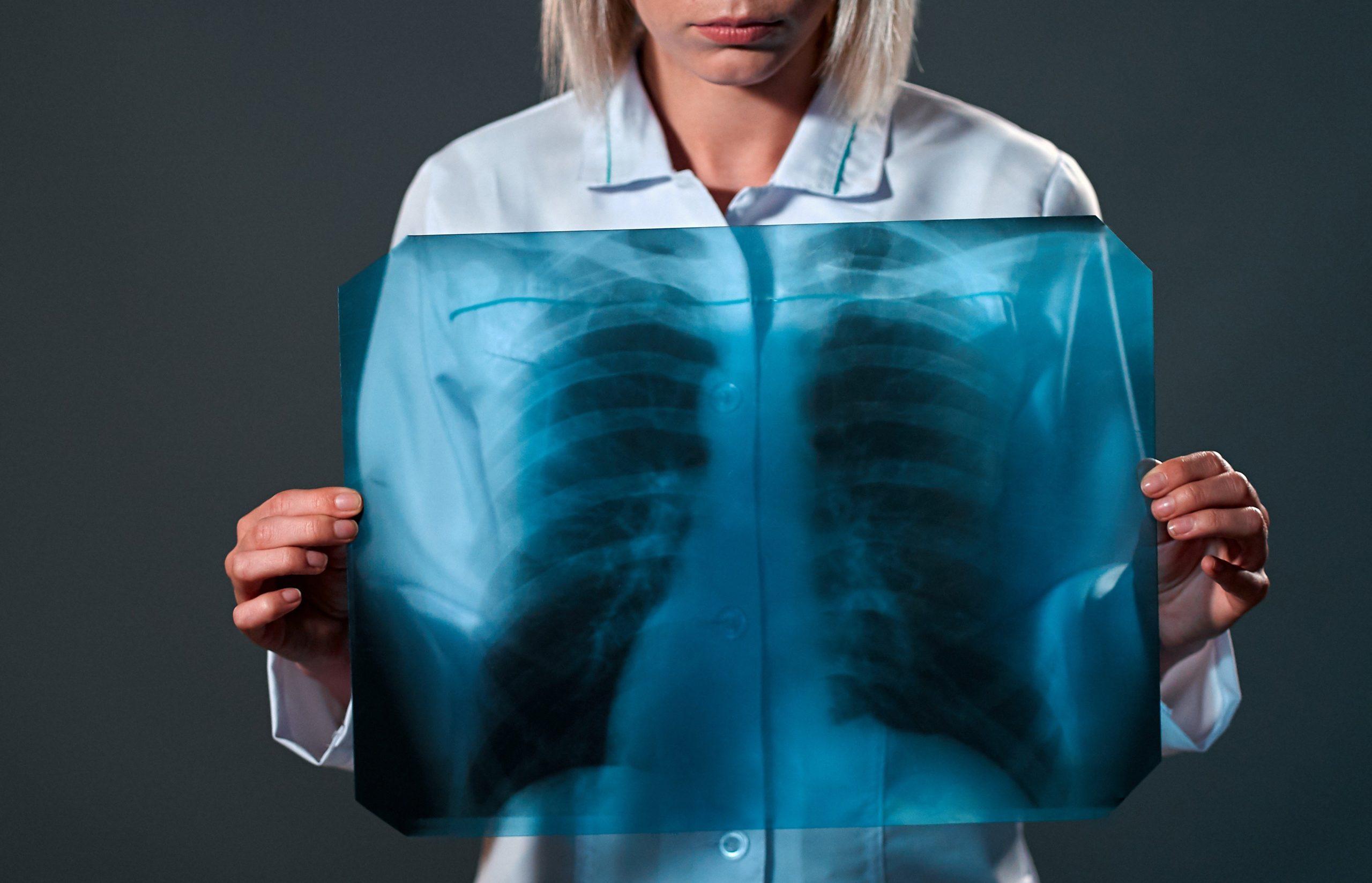 какие лекарства для восстановления легких