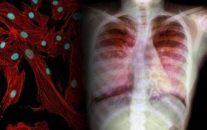 Восстановление легких после фиброза, Вирусные заболевания