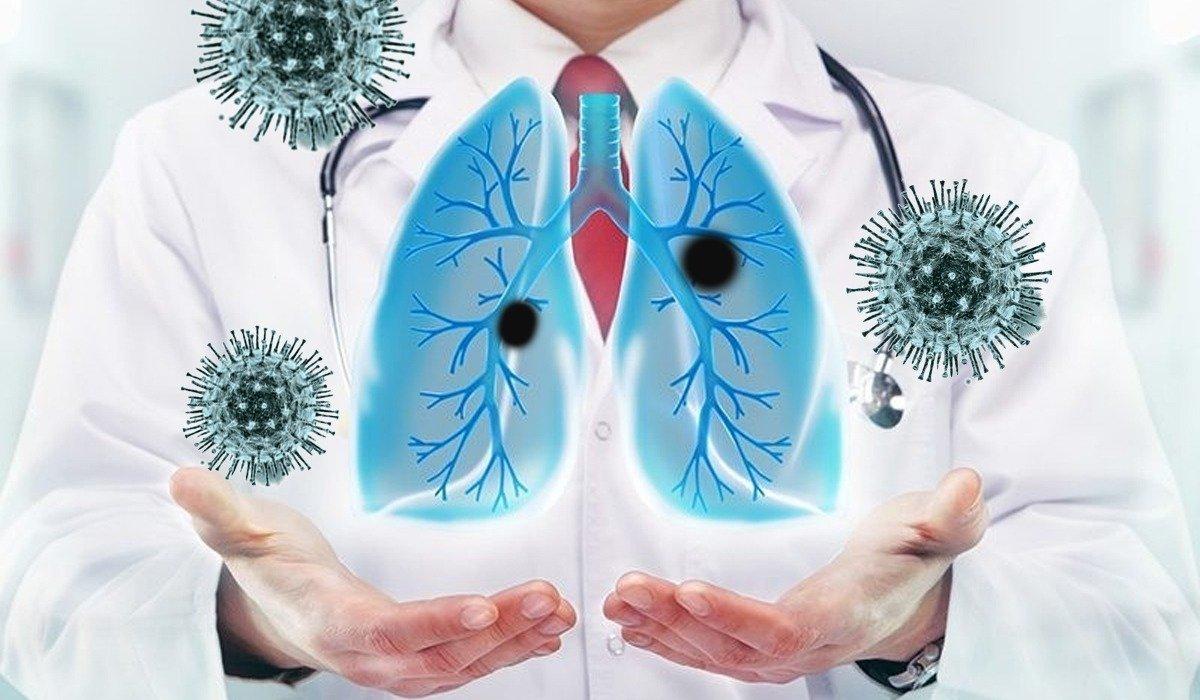 восстановление легких после короновирусной пневмонии