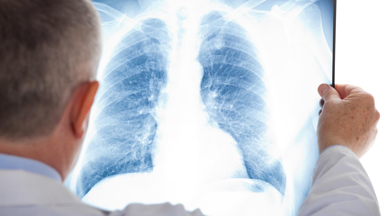 Средства для восстановления легких после пневмонии