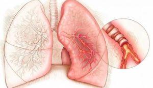 Восстановление легких после коронавируса народными средствами, Вирусные заболевания