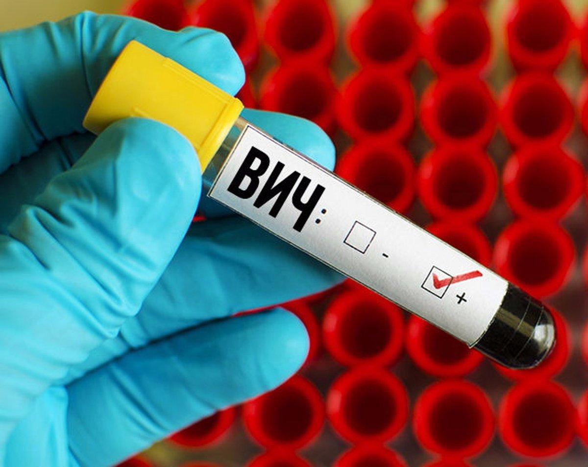 терапия ВИЧ инфекции